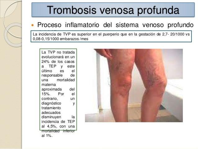 Los dolores a las úlceras varicosas