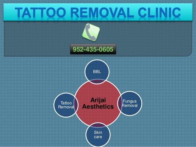 Arijai Aesthetics BBL Fungus Removal Skin care Tattoo Removal 952-435-0605