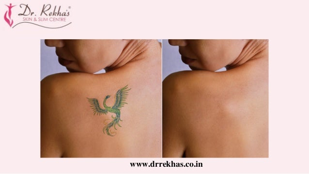 Laser Tattoo Removal In Mumbai | Best Skin Specialist In India