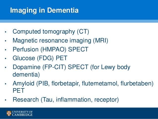 SPECT Molecular Imaging in Parkinson's Disease