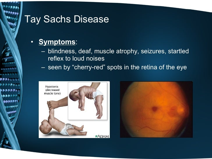 the origin and causes of tay sachs disease Tay-sachs disease is a rare genetic disorder it causes too much of a fatty substance to build up in the brain, which destroys nerve cells.