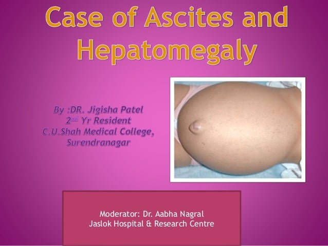 a case of ascites and hepatomegaly, Skeleton