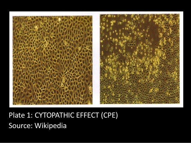 cytopathic effect cpe essay Cytopathic effect or cytopathogenic effect (abbreviated cpe) refers to structural  changes in host cells that are caused by viral invasion the infecting virus causes .