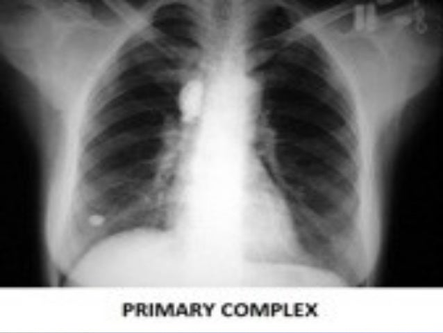 41 TB mediastinal LAP. Rt.TB mediastinal LAP. Rt. paratracheal LAP withparatracheal LAP with central necrosis and the Rcen...