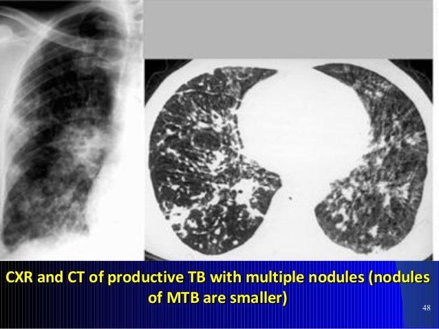 55 PTBPTB pneumothoraxpneumothorax