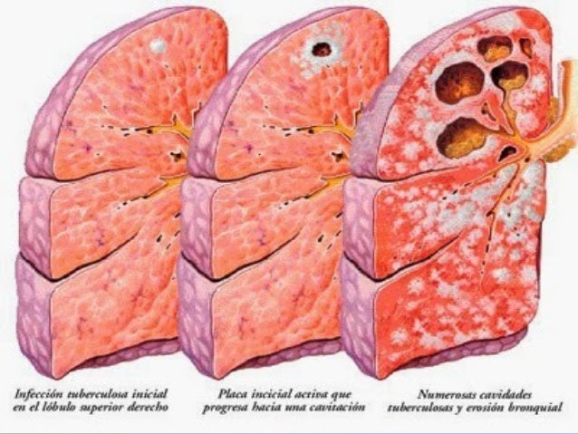 61 MTB of lungsMTB of lungs Spleen in MTBSpleen in MTB MTB seedling of peritoneum