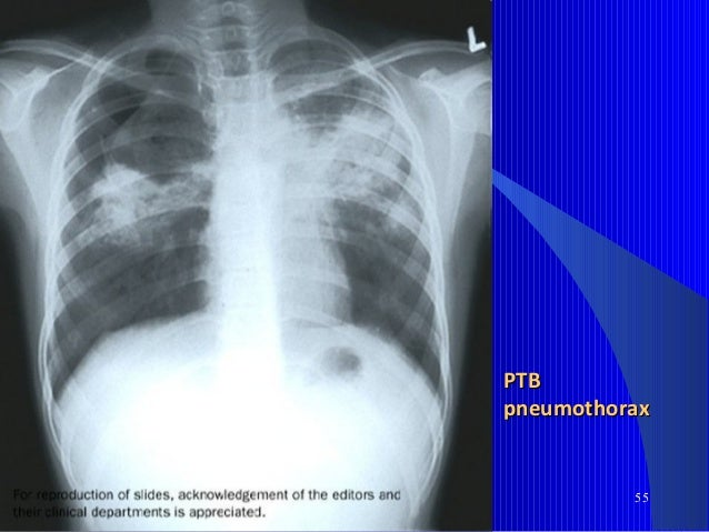 62 TB Pleural EffusionTB Pleural Effusion (exudative)(exudative)  Localized PE is part of primary TBLocalized PE is part ...
