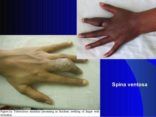 Tuberculin Skin Testing (TST)/Mantoux TST (MT)Tuberculin Skin Testing (TST)/Mantoux TST (MT) Standard method to know inf....