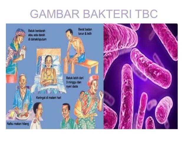 sembilan-penyakit-yang-bisa-dicegah-lewat-imunisasi