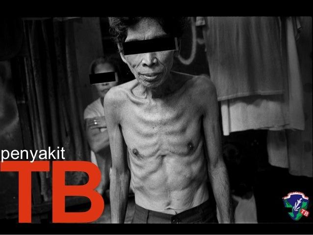 TB penyakit