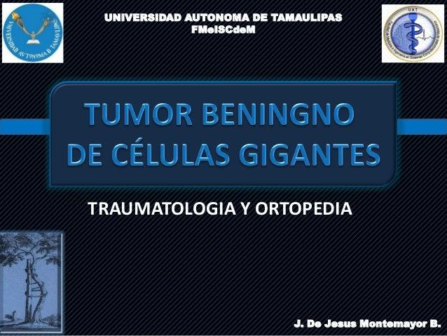 UNIVERSIDAD AUTONOMA DE TAMAULIPASFMeISCdeMTRAUMATOLOGIA Y ORTOPEDIAJ. De Jesus Montemayor B.