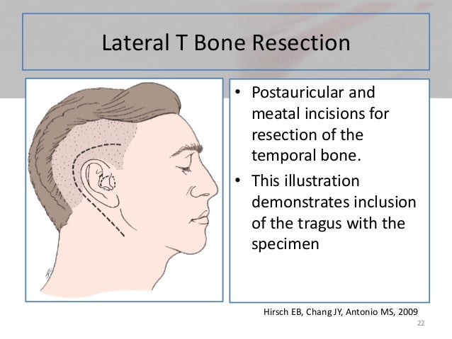 Temporal Bone Carcinoma
