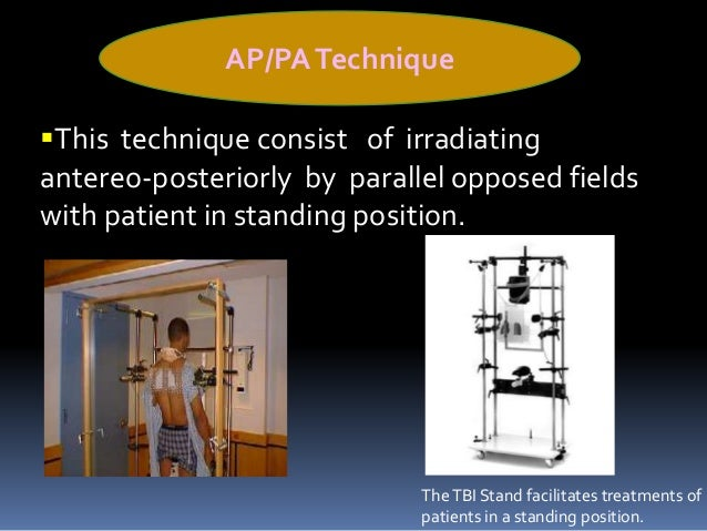 Standing allows shielding of certain critical  organs (eg:lungs) from photons and boosting  {giving extra dose of radiati...