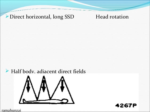 Commissioning of Total Body Irradiation Procedure Need for commissioning TBI? Dose rate at Treatment SSDT Nominal PDD a...