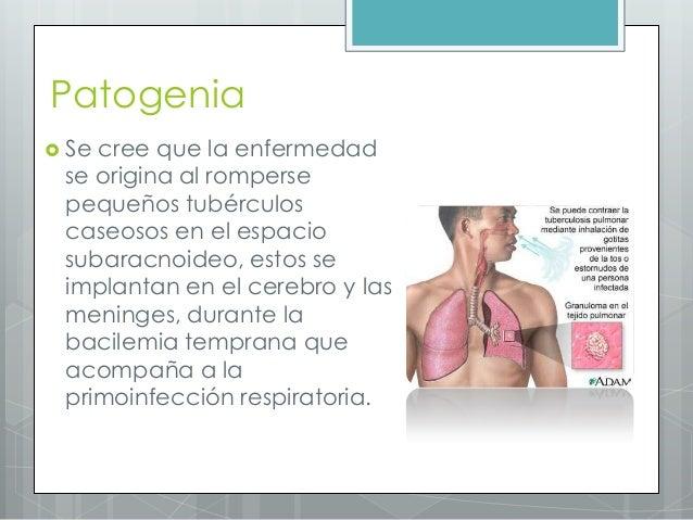 Los medios de varikoza durante el embarazo