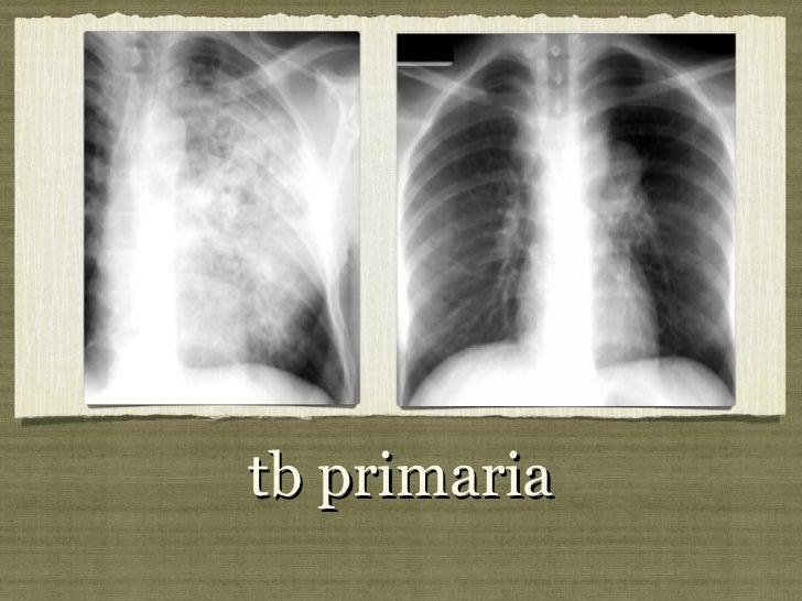 tb primaria