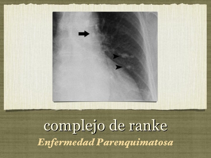complejo de ranke <ul><li>Enfermedad Parenquimatosa </li></ul>