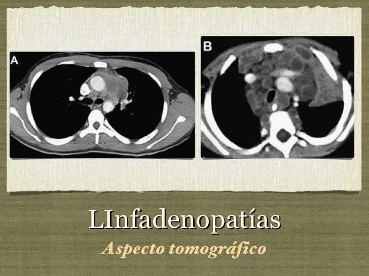 LInfadenopatías <ul><li>Aspecto tomográfico </li></ul>