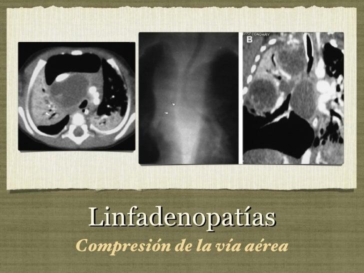 Linfadenopatías <ul><li>Compresión de la vía aérea </li></ul>