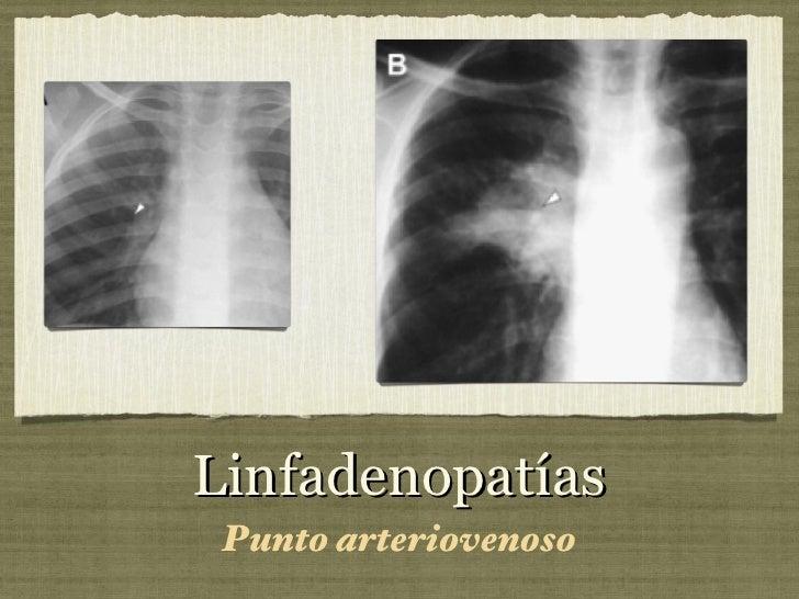 Linfadenopatías <ul><li>Punto arteriovenoso </li></ul>