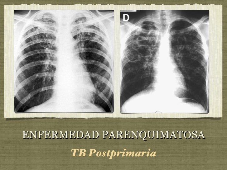 ENFERMEDAD PARENQUIMATOSA <ul><li>TB Postprimaria </li></ul>