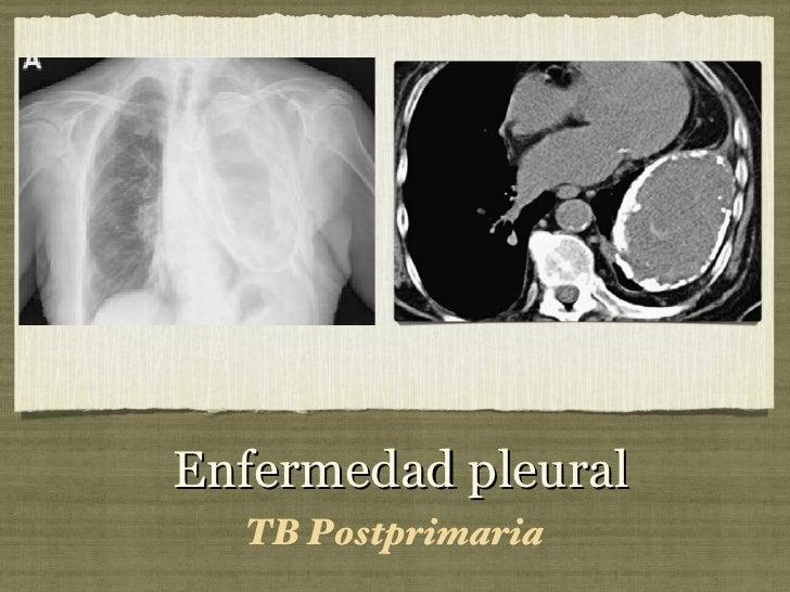 Enfermedad pleural <ul><li>TB Postprimaria </li></ul>