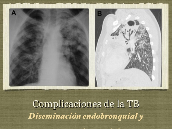 Complicaciones de la TB <ul><li>Diseminación endobronquial y traqueobronquial </li></ul>