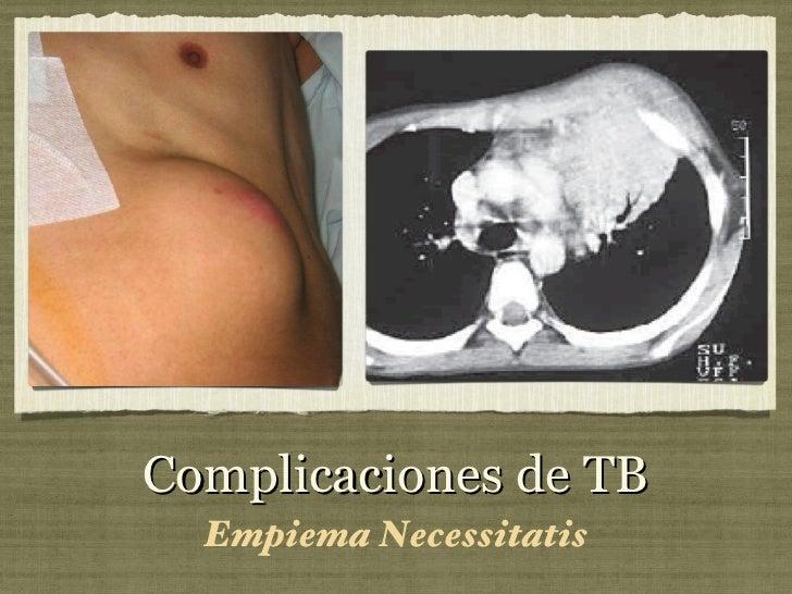 Complicaciones de TB <ul><li>Empiema Necessitatis </li></ul>