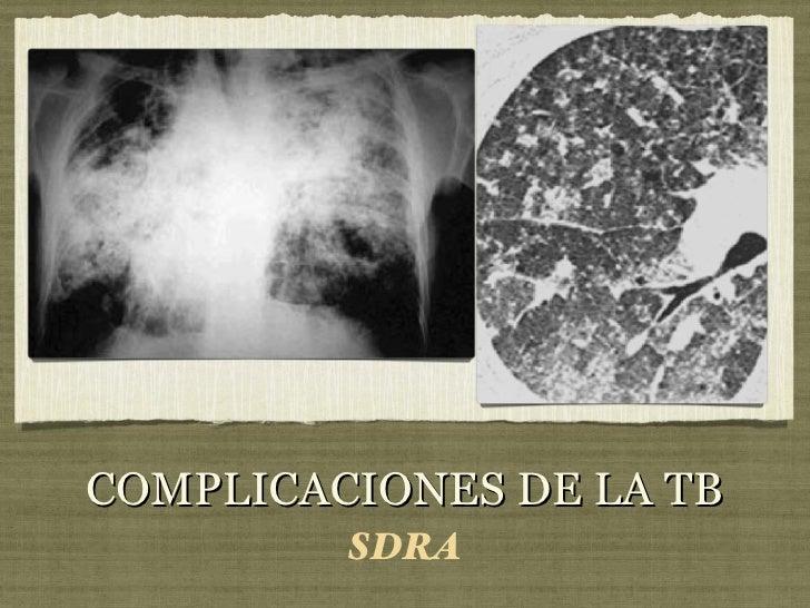 COMPLICACIONES DE LA TB <ul><li>SDRA </li></ul>