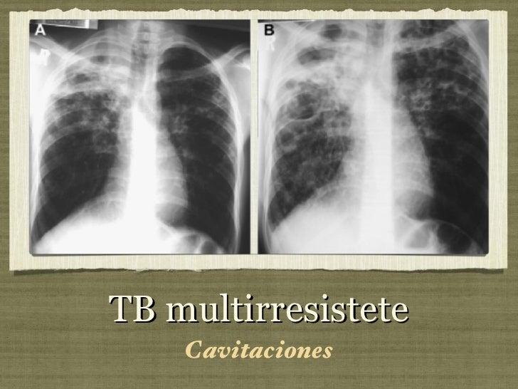 TB multirresistete <ul><li>Cavitaciones </li></ul>