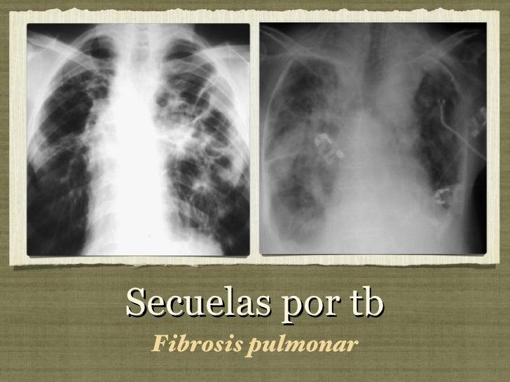 Secuelas por tb <ul><li>Fibrosis pulmonar </li></ul>