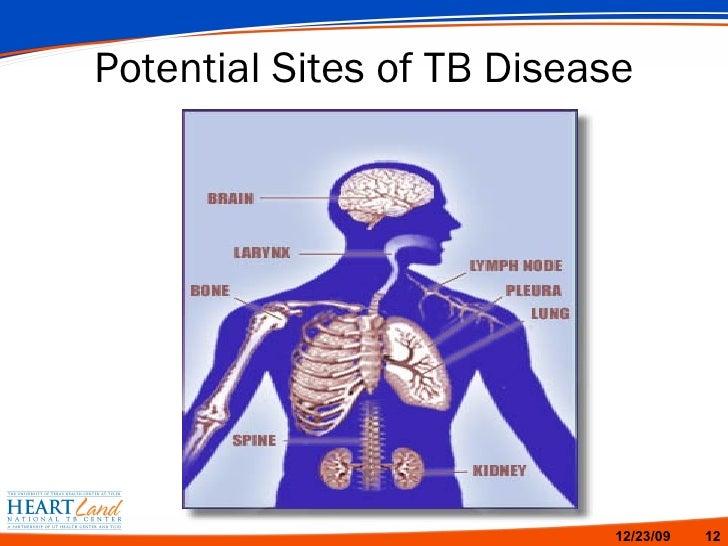 Tb Terminology