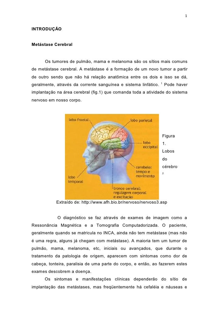 1INTRODUÇÃOMetástase Cerebral      Os tumores de pulmão, mama e melanoma são os sítios mais comunsde metástase cerebral. A...