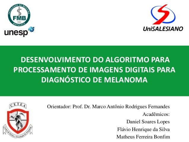 DESENVOLVIMENTO DO ALGORITMO PARA PROCESSAMENTO DE IMAGENS DIGITAIS PARA DIAGNÓSTICO DE MELANOMA Orientador: Prof. Dr. Mar...