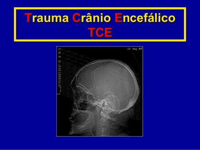 TTraumarauma CCrâniorânio EEncefáliconcefálico TCETCE