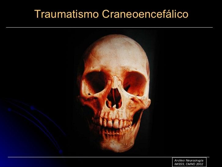traumatismo craneo encefalico Slide 2