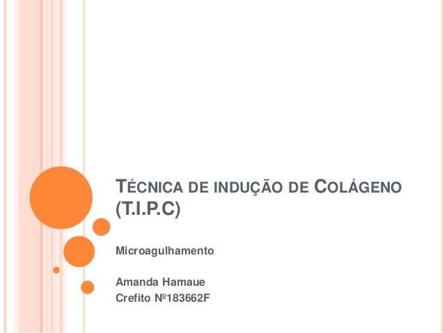 TÉCNICA DE INDUÇÃO DE COLÁGENO (T.I.P.C) Microagulhamento Amanda Hamaue Crefito Nº183662F