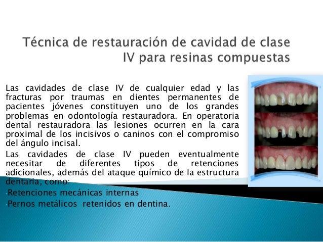 Las cavidades de clase IV de cualquier edad y las fracturas por traumas en dientes permanentes de pacientes jóvenes consti...