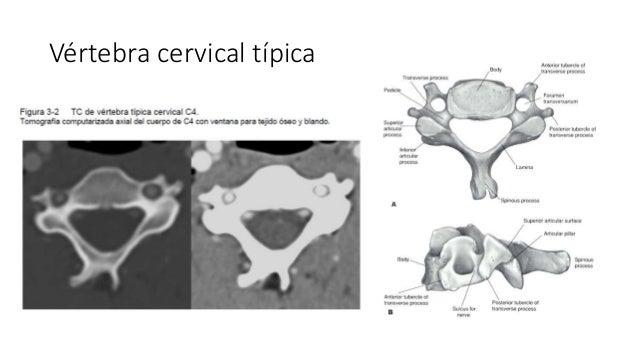 Tomografía Computada y Resonancia Magnética de la Columna Vertebral