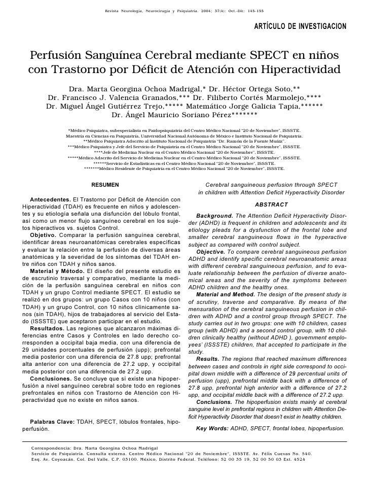 Revista Neurología, Neurocirugía Cerebral (SPECT) en niños c/TDAH                                                   Perfus...