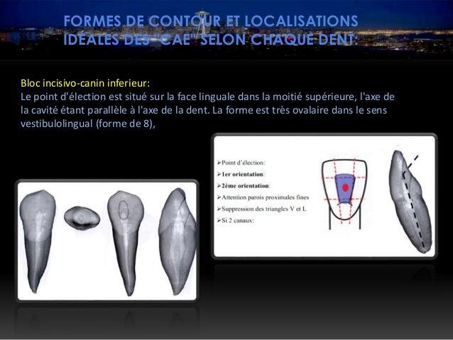 """FORMES DE CONTOUR ET LOCALISATIONS IDÉALES DES """"CAE"""" SELON CHAQUE DENT: Prémolaires inférieures La forme de contour est ar..."""