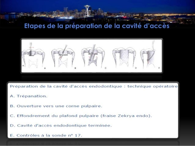 Traitement endodontique