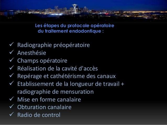 Les étapes du protocole opératoire du traitement endodontique :  Radiographie préopératoire  Anesthésie  Champs opérato...