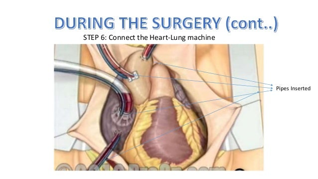 How to perform a open heart surgery ccuart Images