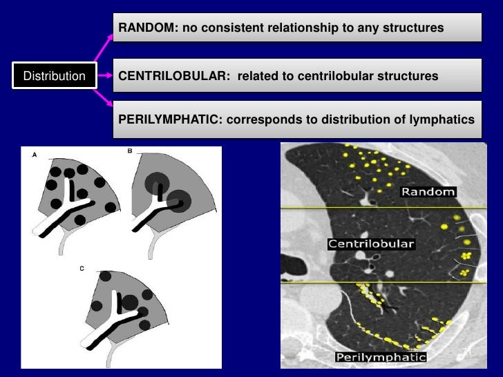 lymphangitic carcinomatosis steroids