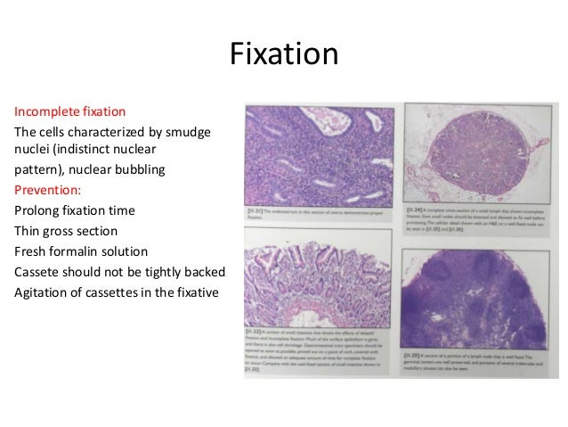 Technical Faults In Histopathology Lab