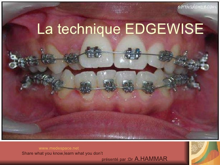 La technique EDGEWISE <ul><li>www.medespace.net </li></ul><ul><li>Share what you know,learn what you don't </li></ul><ul><...