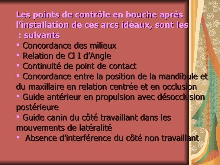 <ul><li>Les points de contrôle en bouche après l'installation de ces arcs idéaux, sont les suivants :   </li></ul><ul><li>...