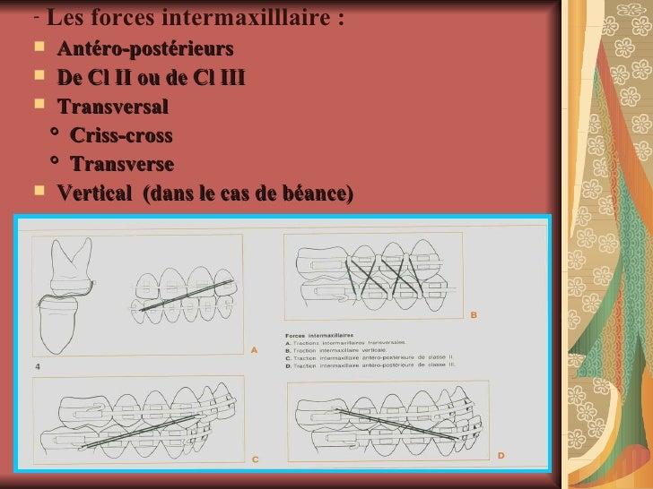 <ul><li>Les forces intermaxilllaire : </li></ul><ul><li>Antéro-postérieurs </li></ul><ul><li>De Cl II ou de Cl III  </li><...