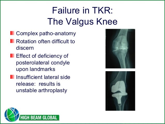 Techniques In Primary Total Knee Arthroplasty